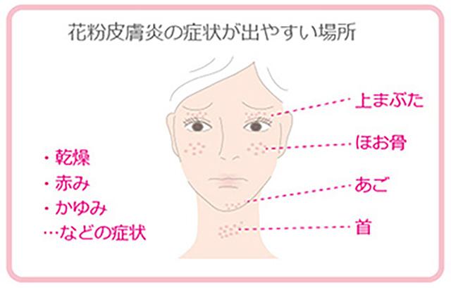 肌荒れ 花粉 症